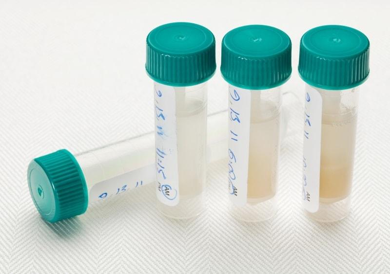 Other Biofluids